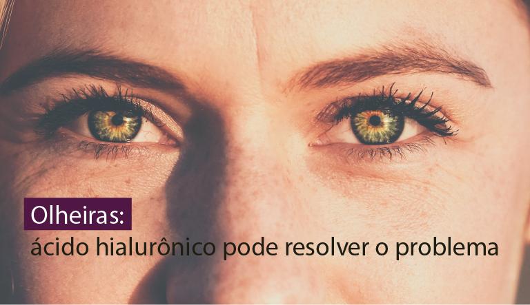 Olheiras: ácido hialurônico pode resolver o problema