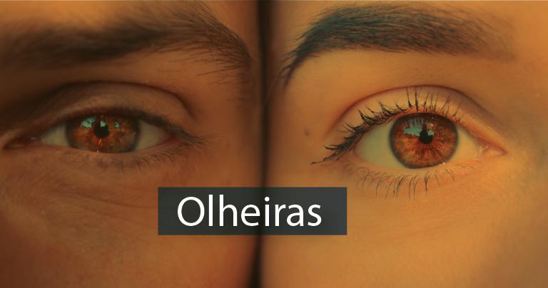 Como tratar as olheiras?